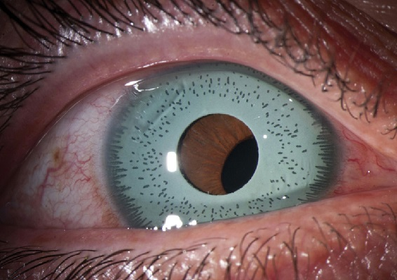 Cosmetic Iris Implant. Decentered Iris implant. The pupil is not aligned