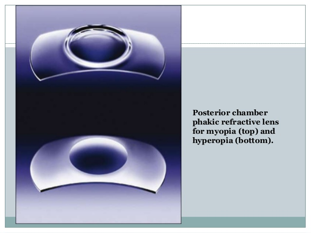 PRL. Phakic refractive lens