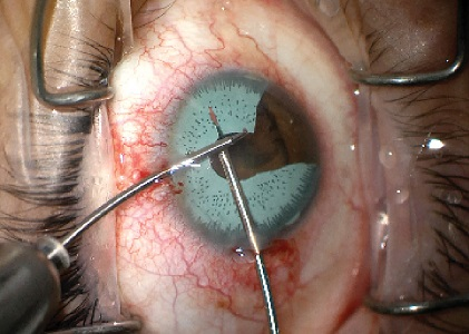 Surgical removal of iris implant due to complications
