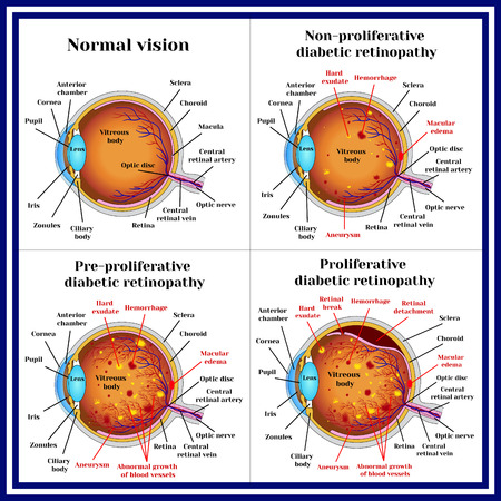 Signs of Diabetic Retinopathy
