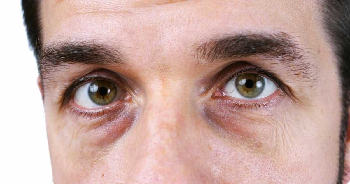 Causes of Dark Circles Under Eyes | best treatment for ...