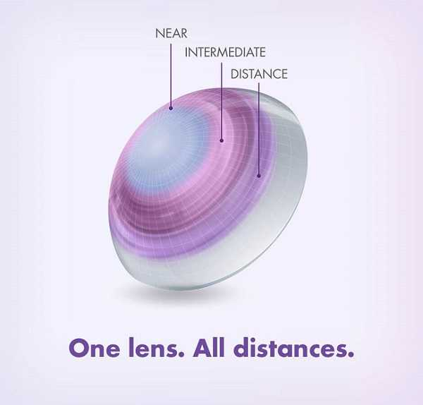 Frequency Multifocal Contact Lenses Bring a New Level of Vision