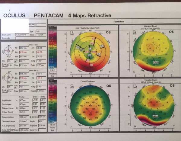 Left Corneal Pentacam for Keratoconus-1