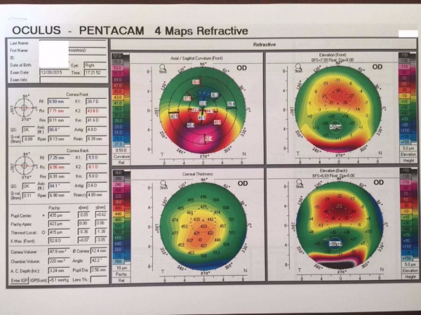 Right Corneal Pentacam for Keratoconus-1