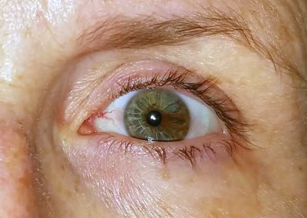 Sentinel Bright red conjunctival blood vessel
