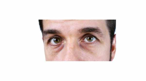 Causes of Black Circles Under Eyes