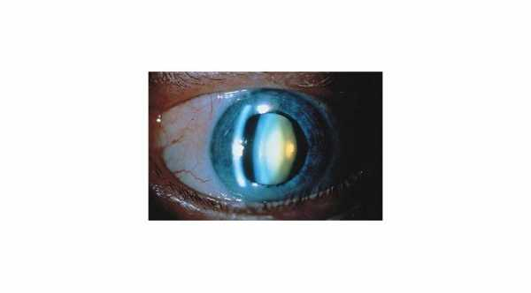 Causes of Cataract © 2019 American Academy of Ophthalmology
