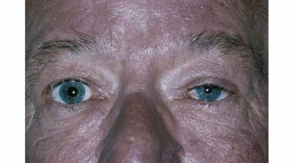 Causes of Ptosis. Horner Syndrome © 2019 American Academy of Ophthalmology