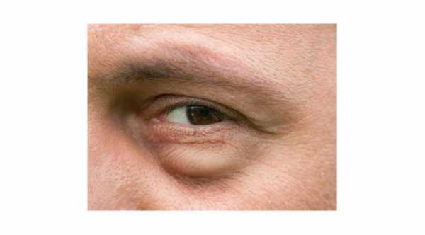Causes of Puffy Eye