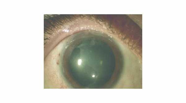 Chemical eye injuries with corneal epithelial defects and ischemia of the limbal area.© 2019 American Academy of Ophthalmology