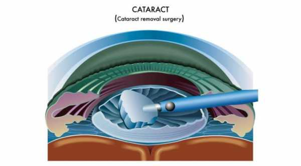 Common Symptoms After Cataract Surgery