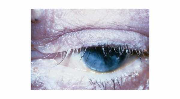 Complications of Blepharitis. Madarosis and Poliosis of the eyelashes due to chronic inflammation in blepharitis.© 2019 American Academy of Ophthalmology