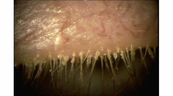 Definition of Blepharitis © 2016 American Academy of Ophthalmology