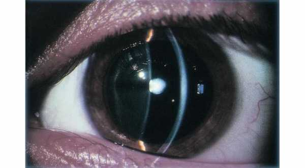 Diagnosis of cataract. Slit Lamp examination of the eye with anterior subcapsular cataract © 2019 American Academy of Ophthalmology