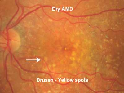 Drusens. Soft, confluent drusen in Age Related Macular Degeneration