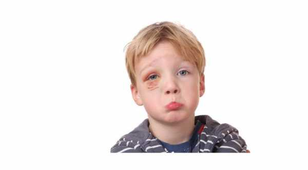 Eye Injuries in Children​