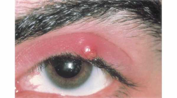 Eye Styes in upper eyelid © 2019 American Academy of Ophthalmology
