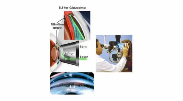 Glaucoma Laser Surgery. Laser Trabeculoplasty for Glaucoma Treatment