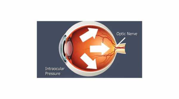 High Intraocular Pressure After Cataract Surgery
