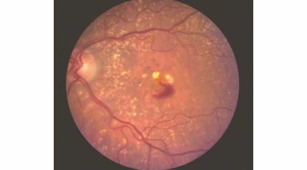 Modified Vitamin A and Macular Degeneration. Blood and exudate due to choroidal neovascularization © 2019 American Academy of Ophthalmology