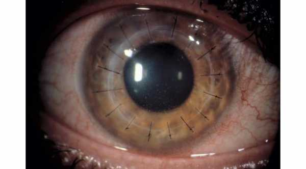 New therapy for improving Corneal Graft Survival in Corneal Transplant rejection
