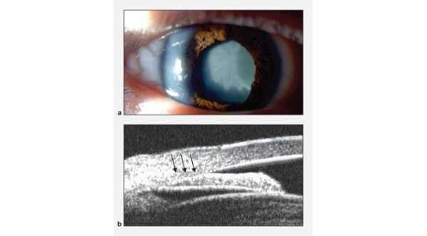 Phacomorphic glaucoma. A- Cataract B-ultrasound biomicroscopy Shows angle closure from cataract.© 2019 American Academy of Ophthalmology