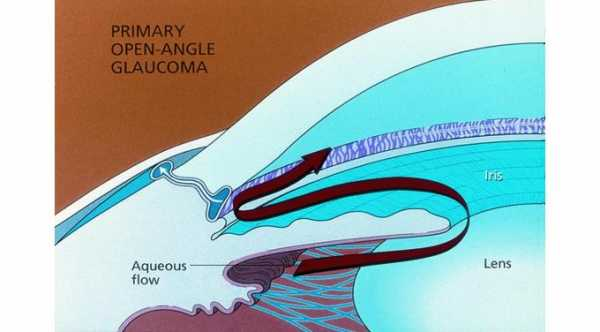 Primary Open Angle Glaucoma © 2019 American Academy of Ophthalmology