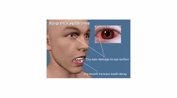Sjogrens Disease with dry eyes and dry mouth