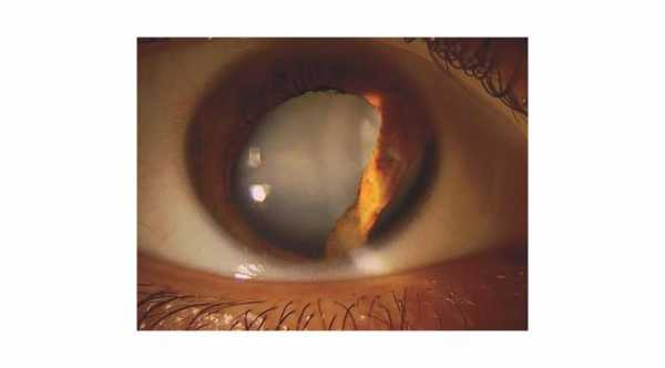 Traumatic Cataract with iridodialysis. © 2019 American Academy of Ophthalmology