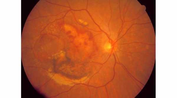 Types of Age Related Macular Degeneration. Wet Age Related Macular Degeneration with subretinal blood and exudates due to CNV © 2019 American Academy of Ophthalmology