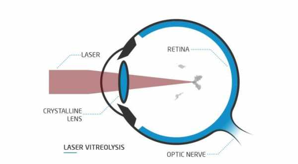 YAG Laser Vitreolysis For Eye Floaters
