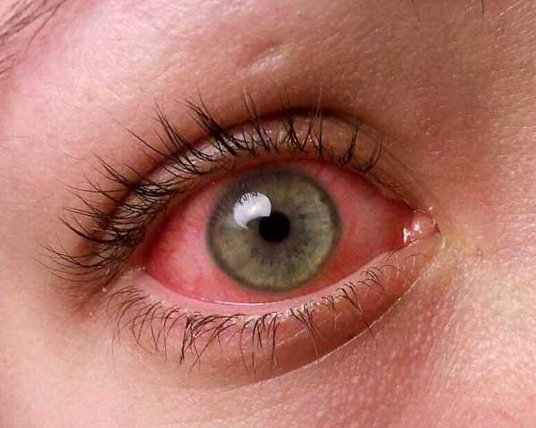 Causes of Pink Eye