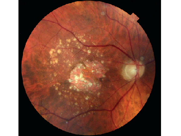 Dry Age Related Macular Degeneration. Severe dry macular degeneration with large geographic atrophy and multiple drusens