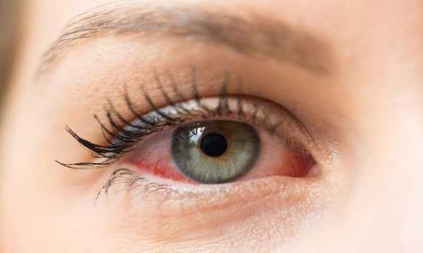 What are the Causes of Dry Eyes