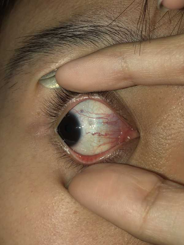 Yellowish stuff on the inner corner of my eye