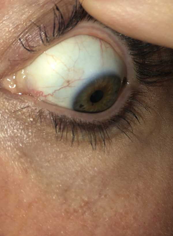 Eye allergies or normal?