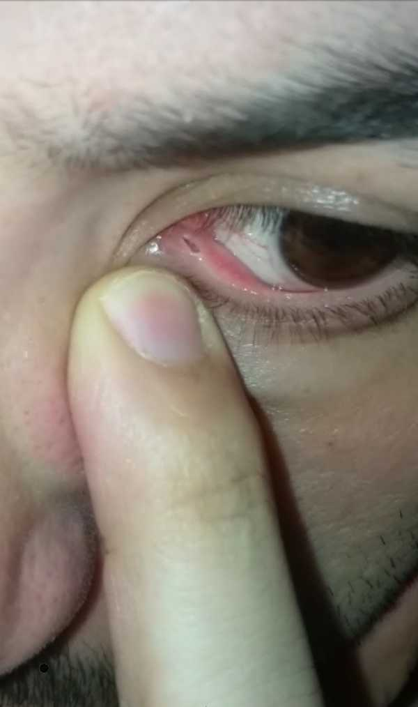 Large size lower lacrimal punctum