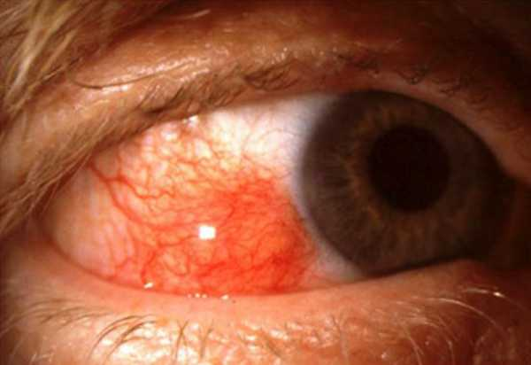 Nodular Scleritis. Redness of the episcleral and scleral layer of the eye with formation of pink to red nodules