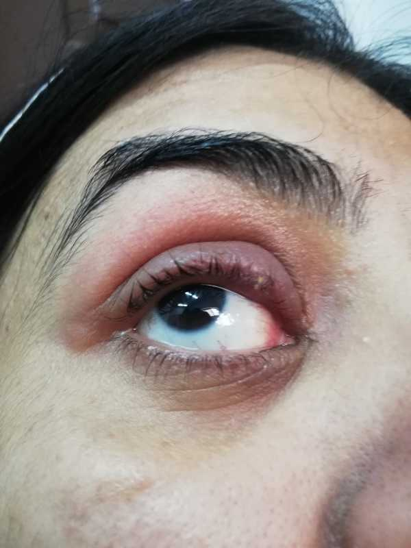Swelling of upper eyelid-1