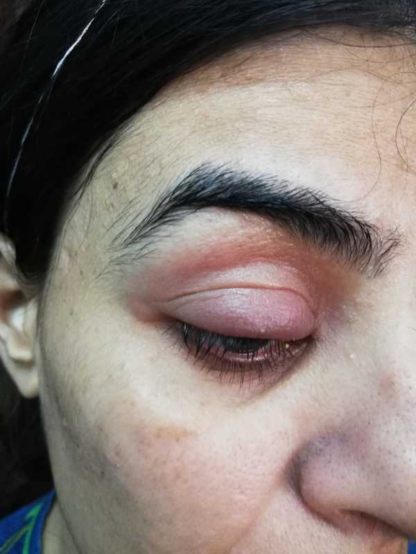 Swelling of upper eyelid-2