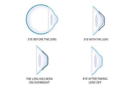 Orthokeratology Lenses