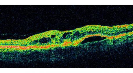 Topical Anti-VEGF Eye Drops. Optical Coherence Tomography of CNV © 2019 American Academy of Ophthalmology