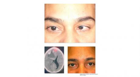 Abducens Nerve Palsy. Large tumor in the left hemisphere cause left sixth nerve palsy © 2019 American Academy of Ophthalmology