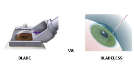 Blade VS Bladeless Lasik Surgery