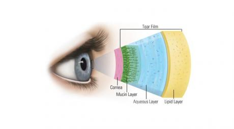 Definition of Dry Eyes. Layers of tear film