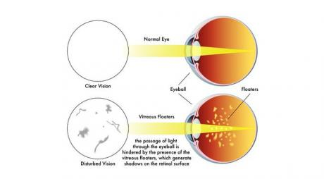 Definition Of Eye Floaters