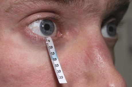Diagnosis of Dry Eyes. schirmer test can be used to diagnosis Dry Eyes