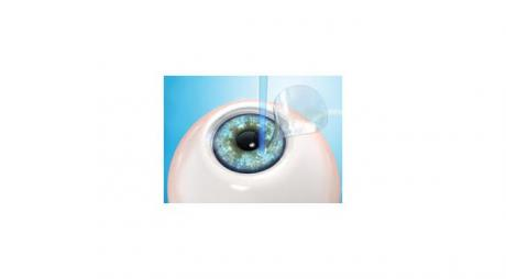 Glue Adhesive for Corneal Flap after Lasik Eye Surgery