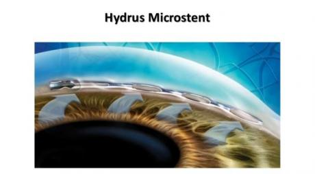 Hydrus Microstent for Glaucoma