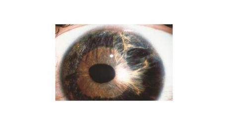 Iridocorneal Endothelial Syndrome. Corectopia in essential iris atrophy. © 2019 American Academy of Ophthalmology